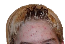 acnee-adolescenti