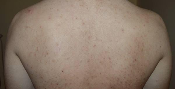 acnee-pe-spate
