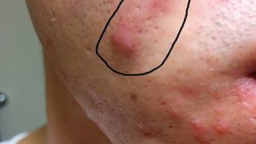acnee mare pe fata