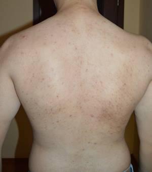 acnee pe spate