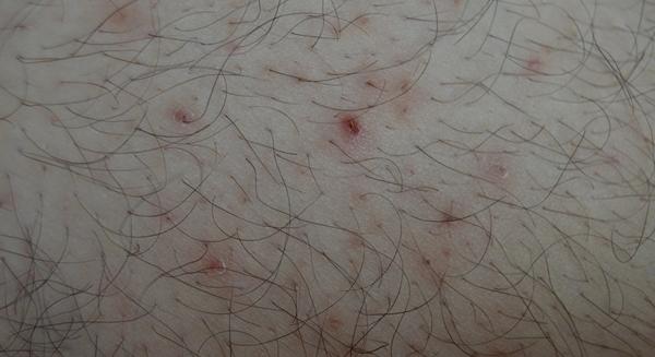 de ce apar cosurile sub piele
