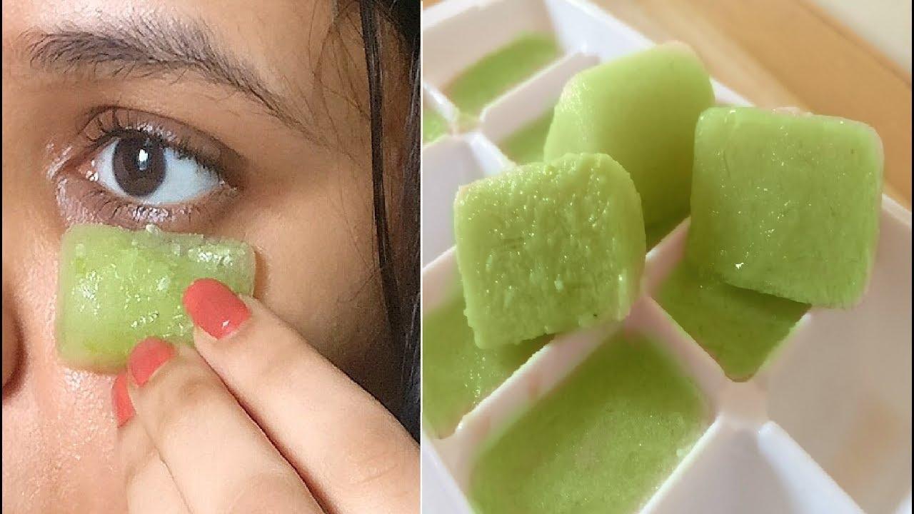 aloe-vera-acnee