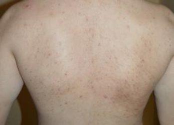 Sfaturi pentru acnee si cosuri